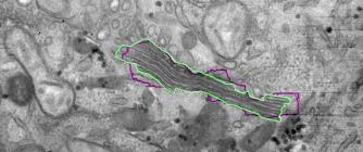 Nanomorphomics: Analysis of Electron Micrographs