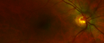 CARMEN: cardiovascular biomarkers from wide-field-of-view retinal scans